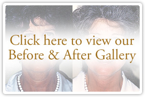Click here to view our Before & After Gallery
