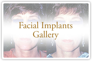 Facial Implants Gallery