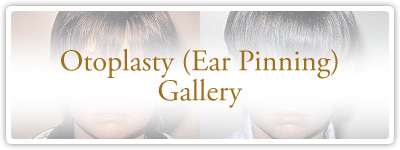 Otoplasty Gallery